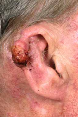 Plaveiselcelcarcinoom (Squamous Cell Carcinoma)
