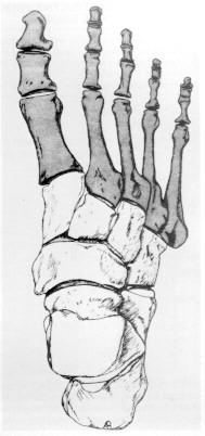 tratamentul infecțiilor osoase și articulare